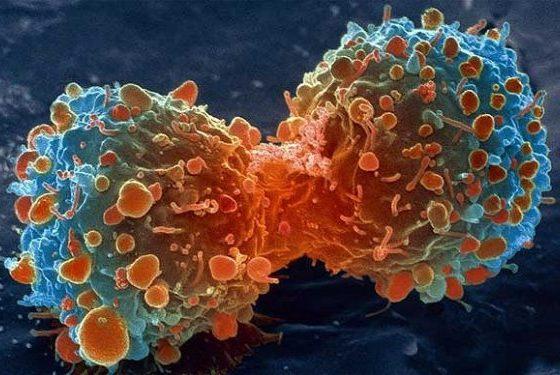 Remediu contra cancerului, descoperit din greseala. Cercetatorii jubileaza